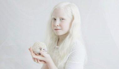 Albino Hastalığı Nedir, Neden Olur, Belirtileri Nelerdir?